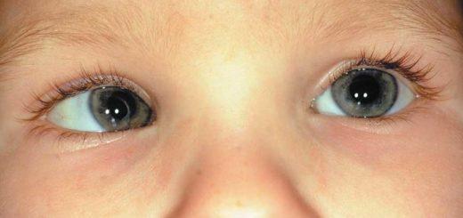 Occhi disallineati, è strabismo?